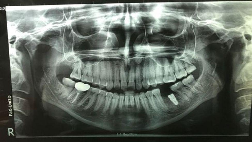 Radiografía de los dientes de Lizzie Porter