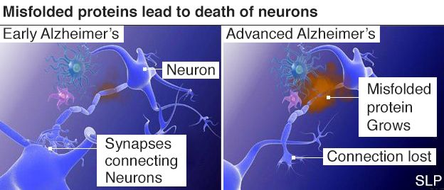 Infographic showing difference between early and advanced Alzheimer's disease