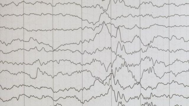 Encefalograma mostra traços de epilepsia