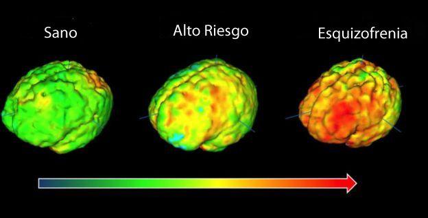 Las imágenes de tres cerebros radiados con diferentes colores según actividad cerebral.
