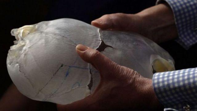 Modelo 3D dos crânios de Safa e Marwa