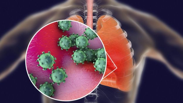 Illustration of a virus in the lung
