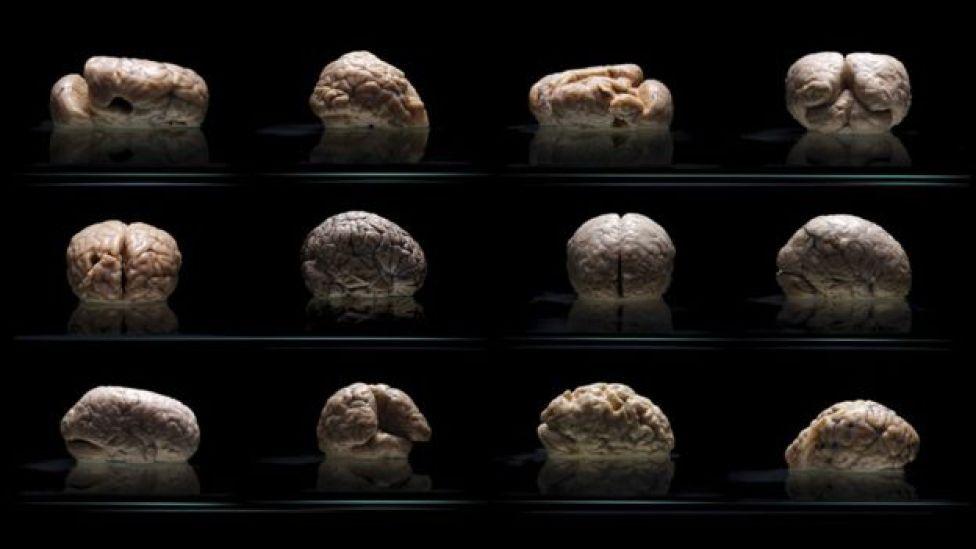 Colección de cerebros.