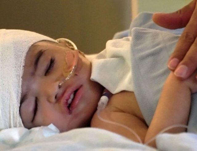 Menina em leito do hospital