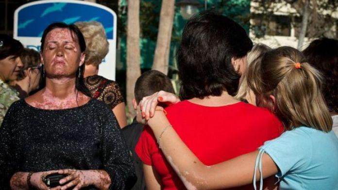 Küba'da vitiligolu kadın