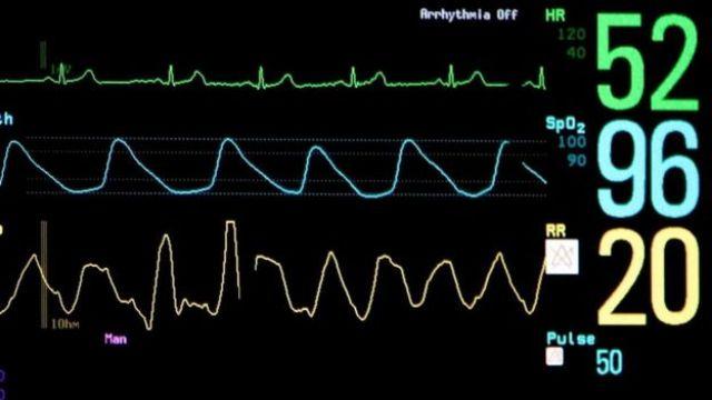 Un monitor cardiaco
