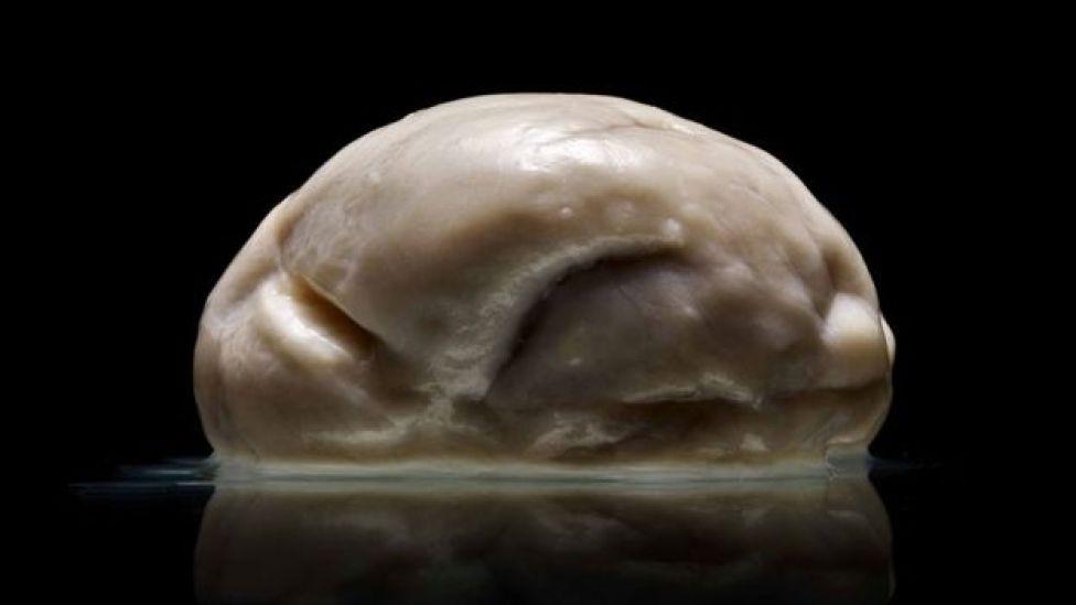 El cerebro con lisencefalia