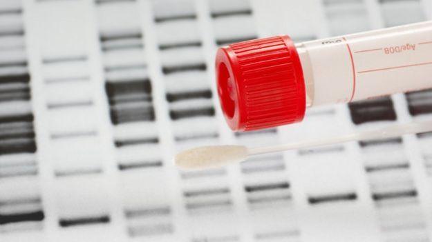 Tubo con muestra de ADN.