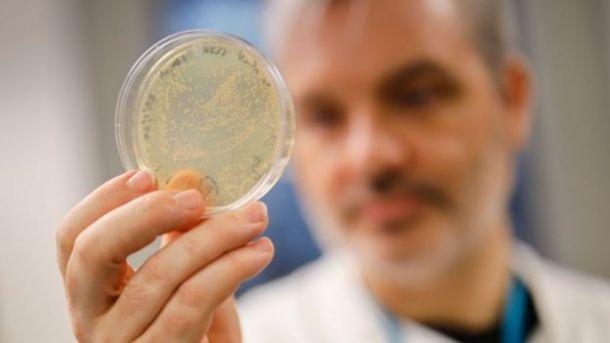 Un médico británico sostiene una placa Petri con bacteria infectada de coronavirus