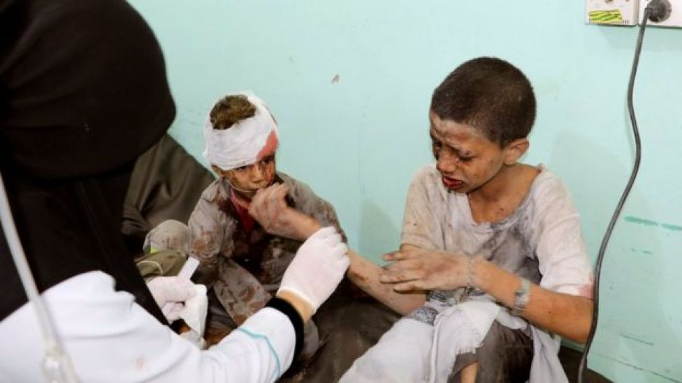 Niños heridos en ataque aéreo