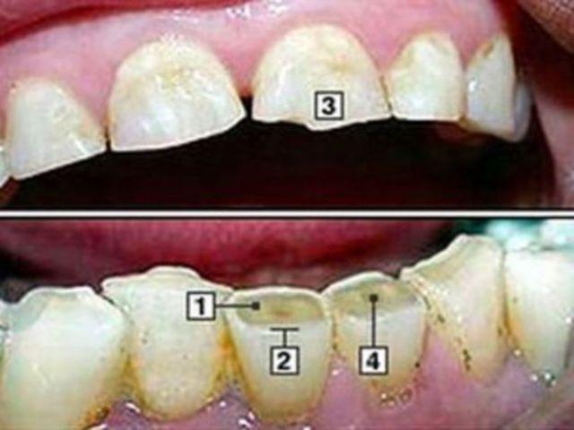 dentes com bruxismo