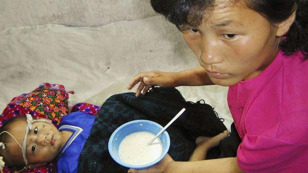 Un niño desnutrido alimentado a base de caldo de avena en Corea del Norte.