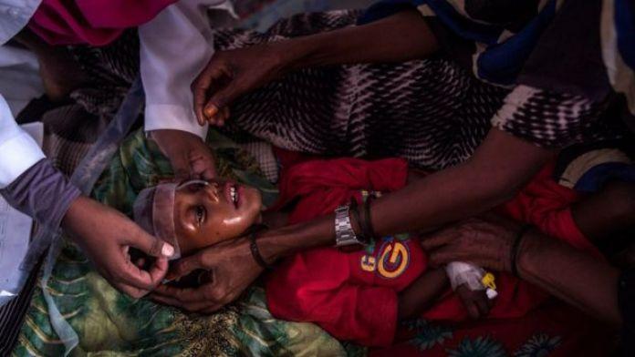 Uma criança desnutrida na Somália