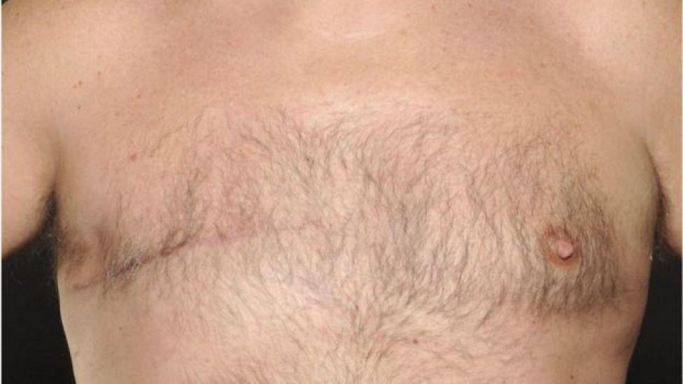 Hombre que fue operado de una mastectomía