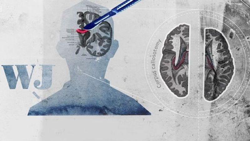 Dibujo del cerebro de WJ con bisturí