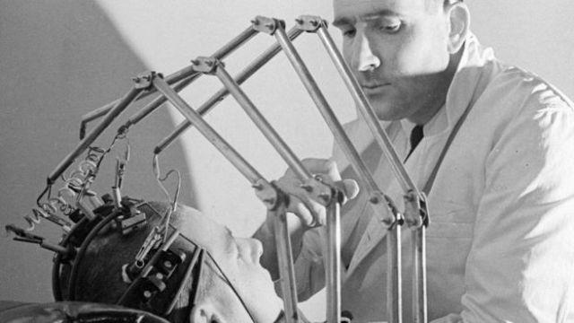 Un doctor en los años 50 con un paciente que tiene unas pinzas conectadas a la cabeza
