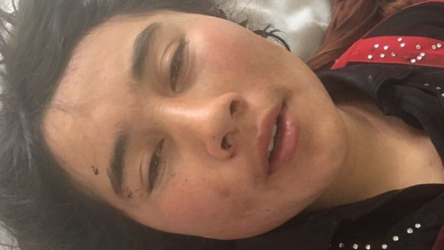 Zarina se recupera en un hospital de Afganistán
