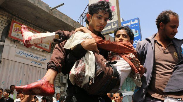 A man carries a boy who was injured during a crossfire between tribal fighters and Shiite militia known as Houthis, in Taiz, Yemen on 26 April 2015