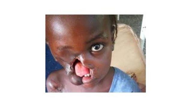 Une enfant atteinte du Noma