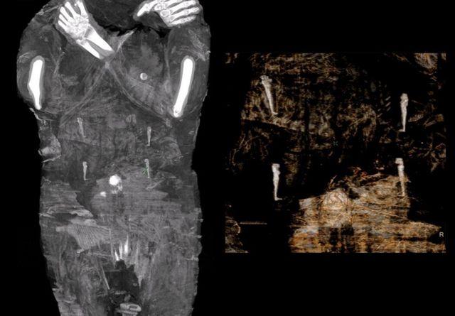 考古大发现:波兰科学家揭秘全球首次发现的孕妇木乃伊 考古大发现:波兰科学家揭秘全球首次发现的孕妇木乃伊