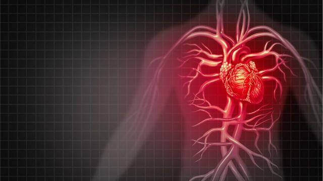 Gara Gara Kehilangan Gen Jutaan Tahun Lalu Manusia Jadi Satu Satunya Spesies Yang Rentan Penyakit Jantung Bbc News Indonesia