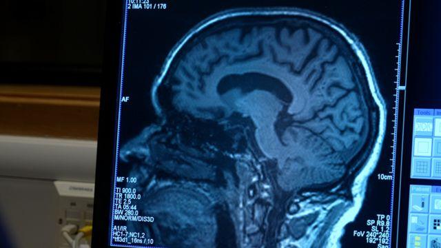 Мозг пациента