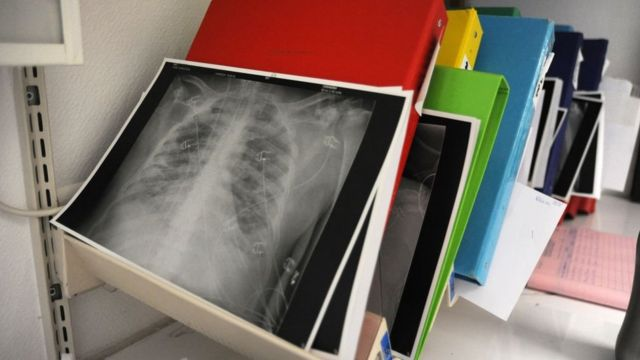 Medical resuscitation service at Jacques Cartier Hospital in Massy. An x-ray of the lungs of a patient infected with the Coronavirus