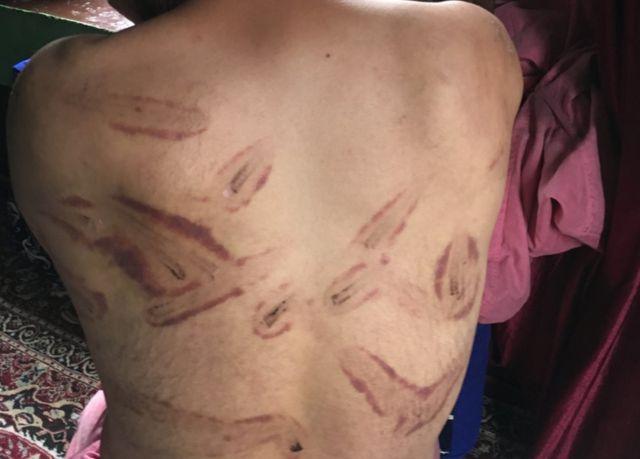 Señales de tortura en la espalda de un hombre en Cachemira.