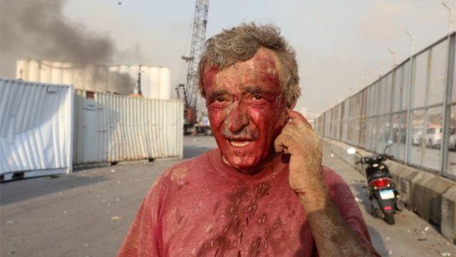 Hombre herido tras la explosión en Beirut.