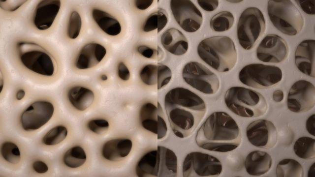الاختلافات في كثافة العظام أعلى (على اليسار)، ومنخفض (على اليمين)