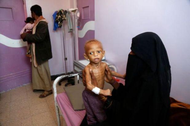 طفل يمني يعاني من سوء التغذية في قسم سوء التغذية بمستشفى السبعين، حيث يتلقى العلاج في 13 فبراير /شباط 2021 بصنعاء.