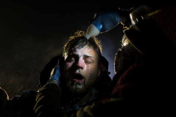 رجل يتلقى علاج حليب المغنيسيا بعد تعرضه لزاز الفلفل