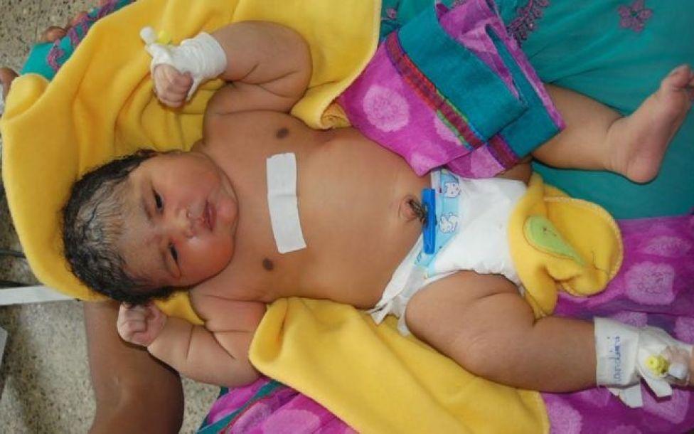 India's 'heaviest baby girl'