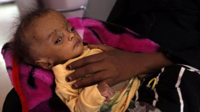 "A Yemeni woman holds her malnourished child receiving treatment amid worsening malnutrition at a hospital in Sana""a, Yemen, 24 November 2017."