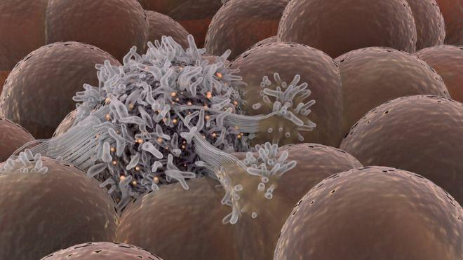 Resultado de imagem para Cientistas holandeses conseguem curar o câncer em apenas 11 dias sem o uso de quimioterapia