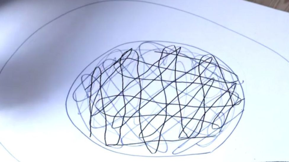 Círculo de dolor en el centro de un círculo concéntrico