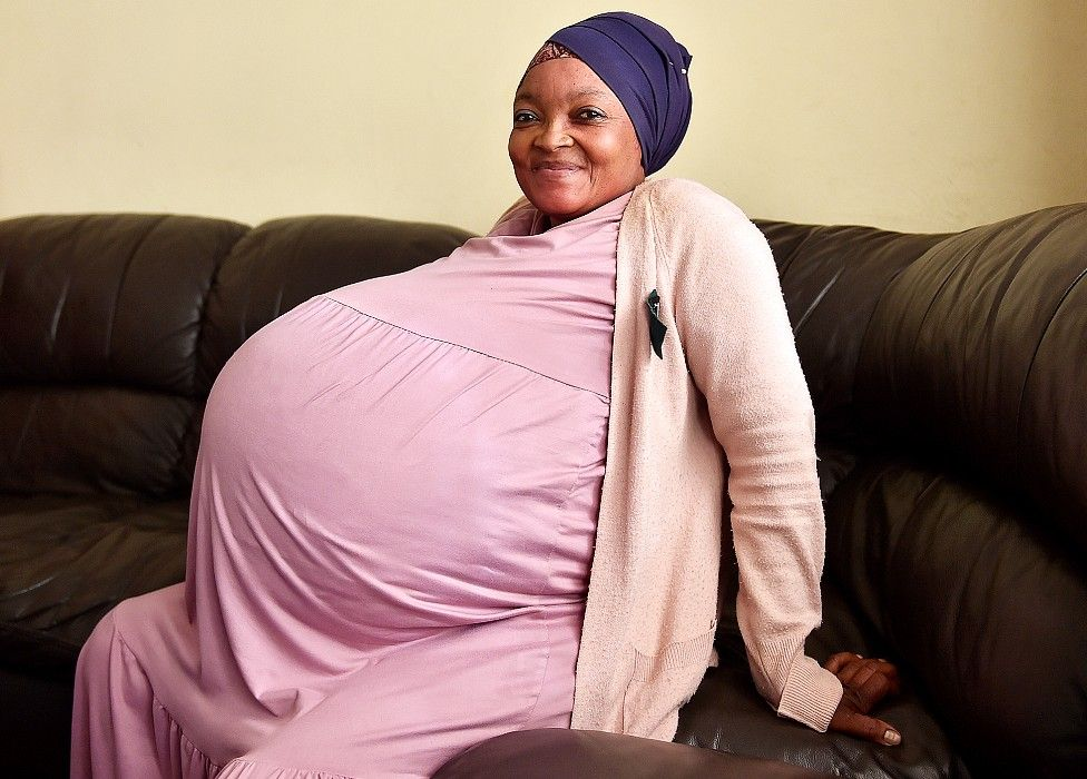 South African woman gives birth to 10 babies in Pretoria - reports - BBC News