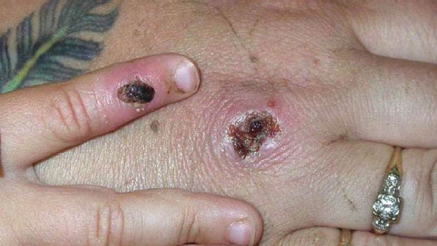 Scabs on a person's hands from monkey pox