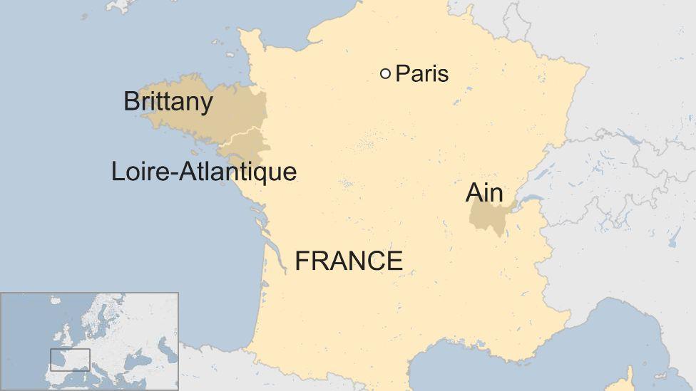french ain babies missing limb births