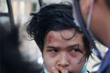 A demonstrator injured by police water cannon looks on during a protest against the military coup, in Nay Pyi Taw, Myanmar, 09 February 2021.