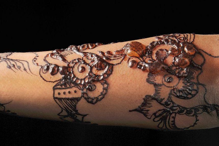 Black henna allergy - Nicola Kelley, Cardiff and Vale University Hospital NHS Trust