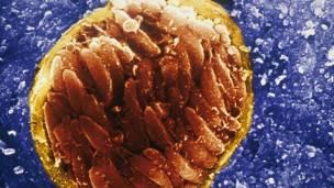 Quiste de toxoplasma