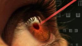 Los daños en la vista causados por punteros láser pueden ser permanentes.