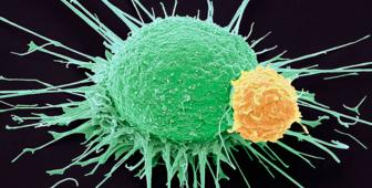 Knowing how to trigger an immune response may help beat cancer (SPL)