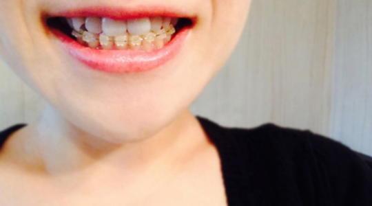歯並び 矯正 期間