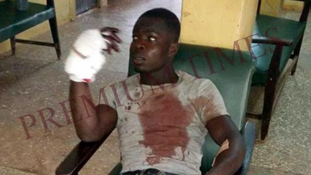 Wounded IPOB supporter