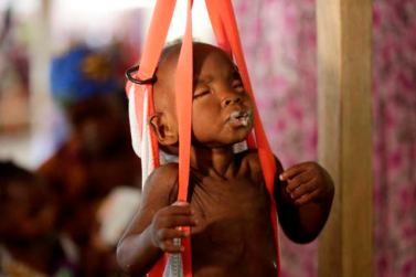 A malnourished child is weigh on a scale at a clinic run by Doctors Without Borders in Maiduguri Nigeria, Monday Aug. 29, 2016. Children who escaped Boko Haram's Islamic insurgency now are dying of starvation in refugee camps in northeastern Nigeria's largest city as the government investigates the theft of food aid by officials. ( AP Photo/Sunday Alamba)