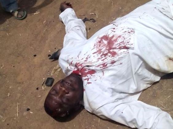File: Borno State Deputy Governor, Usman Durkwa, after he was attacked by thugs in March 2015