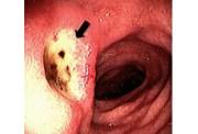 GI ulcer