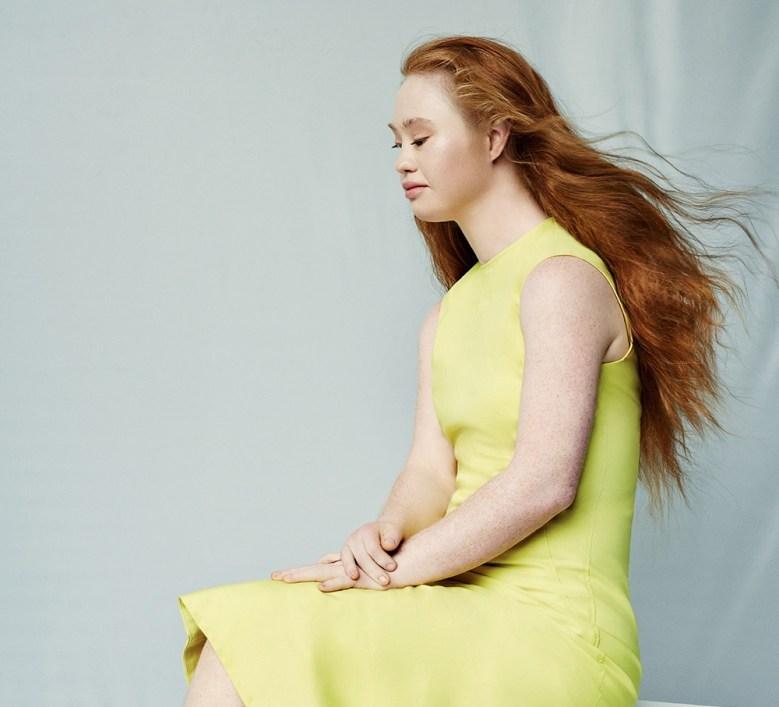 Australian model Madeline Stuart wearing a yellow dress